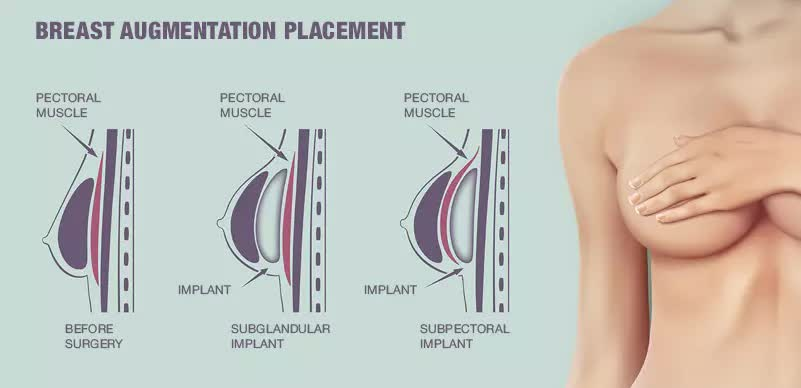 Este With Care Breast Implant Plastic Surgery in Turkey