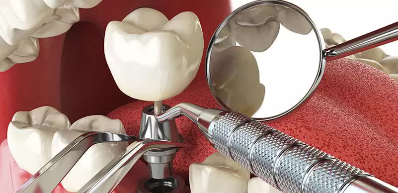 Este With Care Dental Implant in Turkey
