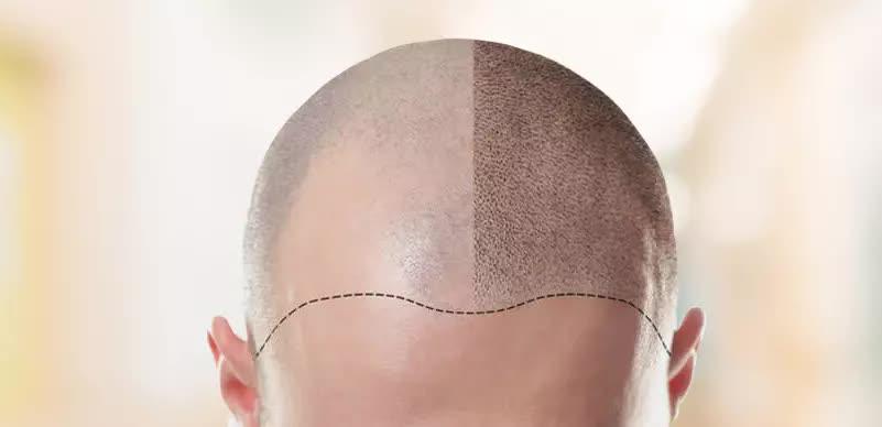 Este With Care Haartransplantatie in Turkije