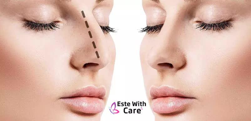 Este With Care Neuscorrectie / Rhinoplastie Plastische Chirurgie in Turkije